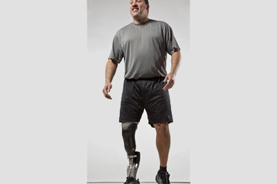 People are less tired because the BiOM allows them to walk with less metabolic energy - Sunshine Prosthetics and Orthotics in Wayne NJ