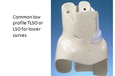 Boston Brace for lower curves in scoliosis  - Sunshine Prosthetics and Orthotics in Wayne NJ