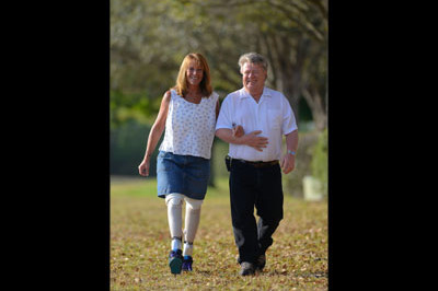 A more natural gait reduces the forces and moments that are believed to be causal of knee degradation and associated knee pain - Sunshine Prosthetics and Orthotics in Wayne NJ