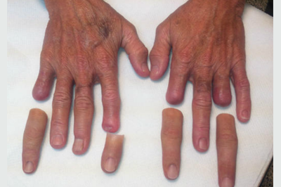 Alternative Prosthetic Services four finger restoration Before