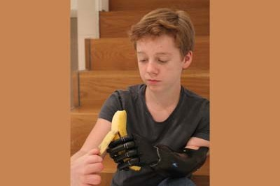 iLimb Ultra grips and holds - fitted at Sunshine Prosthetics and Orthotics in Wayne NJ