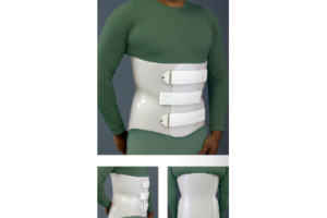Spinal Technologies anterior overlap LSO - custom fitted at Sunshine Prosthetics and Orthotics, Wayne NJ