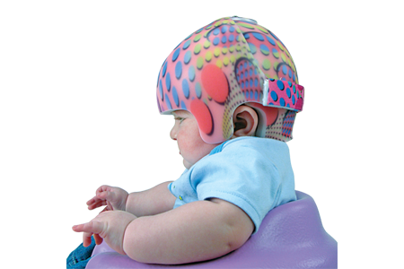 STARband  Cranial Remolding helmet in rainbow colors - Sunshine Prosthetics and Orthotics, Wayne NJ
