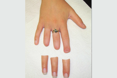 Alternative Prosthetic Services three finger restoration Before