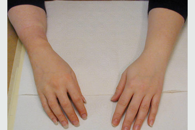 Alternative Prosthetic Services transradial hand restoration After