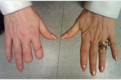 Alternative Prosthetic Services  two finger restoration Before